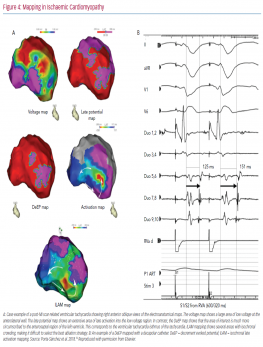 Mapping in Ischaemic Cardiomyopathy