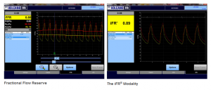 Volcano CORE™/CORE™™Mobile / S5/S5i™ FFR/IFR® Software With Case Manager