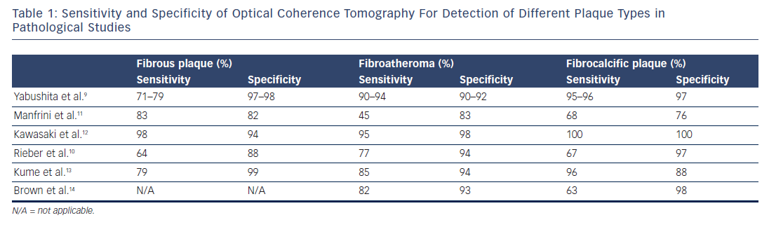 Table 1: Sensitivity and Specificity of Optical Coherence Tomography For Detection of Different Plaque Types in Pathological Studies
