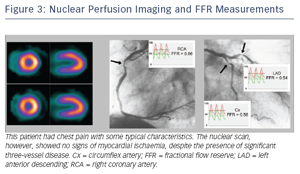 Nuclear Perfusion Imaging and FFR Measurements