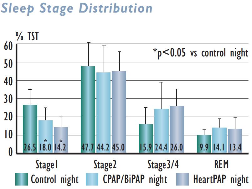Sleep Stage Distribution