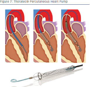 Thoratec® Percutaneous Heart Pump