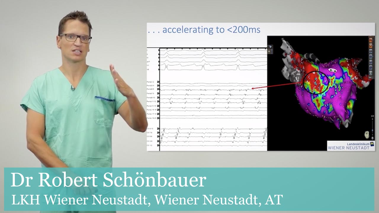High Resolution Mapping in AF: Dr Robert Schönbauer