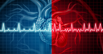 Ivabradine and AF: Coincidence, Correlation or a New Treatment?