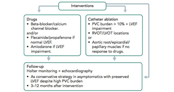 Premature Ventricular Complex-induced Cardiomyopathy