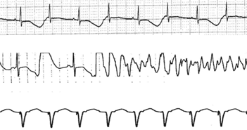 Efavirenz associated QT prolongation Torsade de pointes arrhythmia