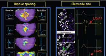 Impact of Micro-, Mini- and Multi-Electrode