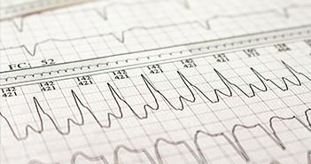 Atrial Tachycardias After Atrial Fibrillation Ablation: How to Manage?