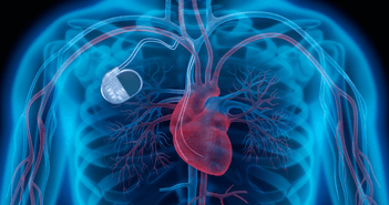 Cardiac Resynchronisation Therapy and Cellular Bioenergetics