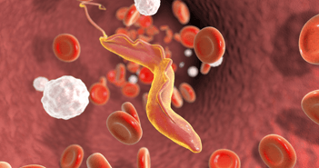 Chagas Disease and Heart Failure: An Expanding Issue Worldwide