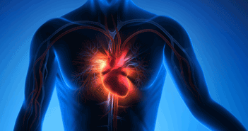 Catheter Ablation For Ventricular Tachycardia