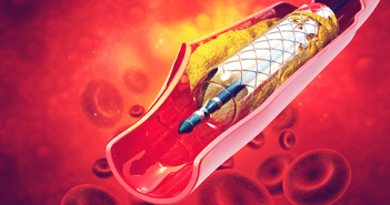 Percutaneous Coronary Intervention: Developments in the Last 12 Months
