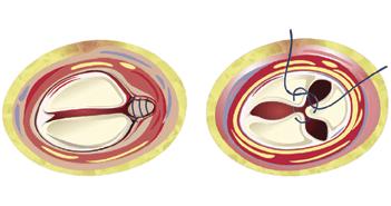 Transcatheter Edge-to-edge Repair of Severe Tricuspid Regurgitation