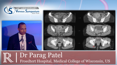 VS 2019 - Management of Vein Obstruction - Dr Parag Patel