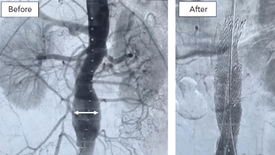 Background and Proposed Design for a Metformin Abdominal Aortic Aneurysm Suppression Trial