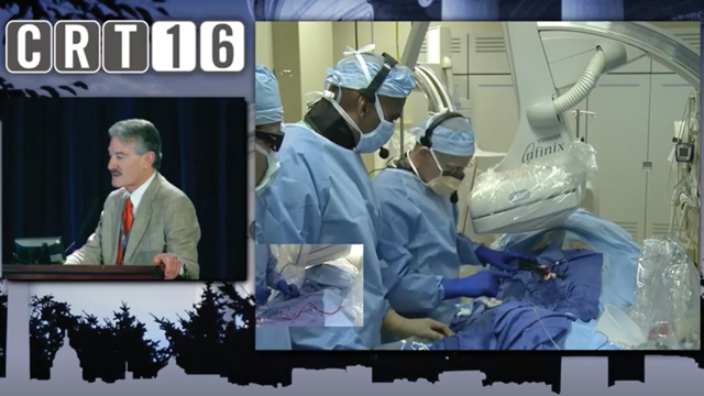 CRT 2016 Endovascular - SFA Stenting