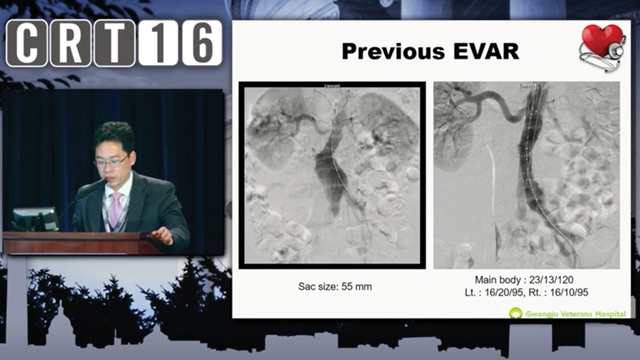 Case 6: Renal Artery Stenosis After Endovascular Aortic Repair Won-Yu Kang, MD