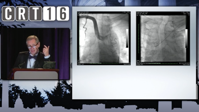 CRT 2016 Coronary - My Most Complex Vascular Access Cases