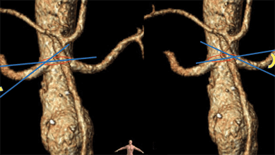 Endovascular Rescue of Simultaneous Renal Stent Thrombosis