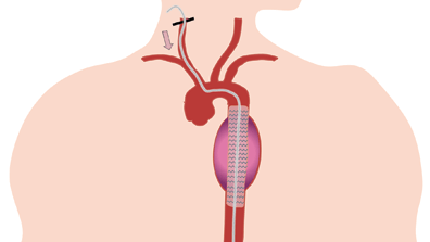 Carotid Access for Aortic Interventions